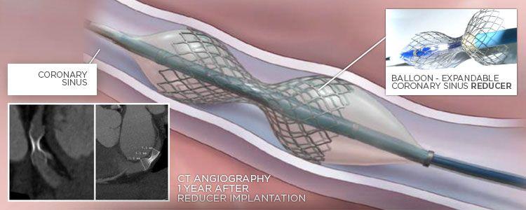 Reducer: Coronary Sinus Reducer Device | Neovasc, compañía representada por World Medica