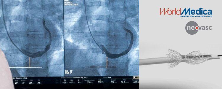 En la foto se aprecia el dispositivo Reducer implantado (imagen del lado izquierdo del monitor)