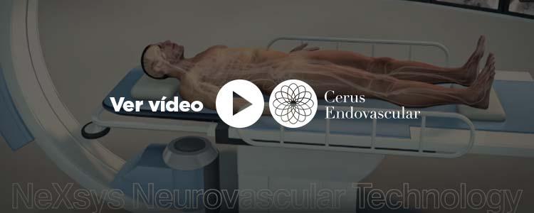 Cerus Endovascular, ver vídeo