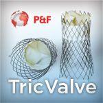 TricValve