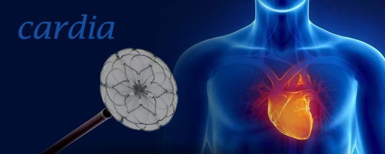 Cardia | Compañía representada por World Medica