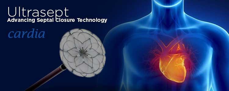 Ultrasept de Cardia | Compañía representada por World Medica