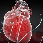 Catéteres Diagnóstico Bioteq