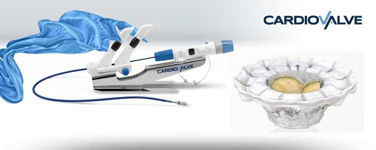 Cardiovalve - Dispositivo percutáneo transcatéter para la sustitución de la válvula mitral (TVMR)